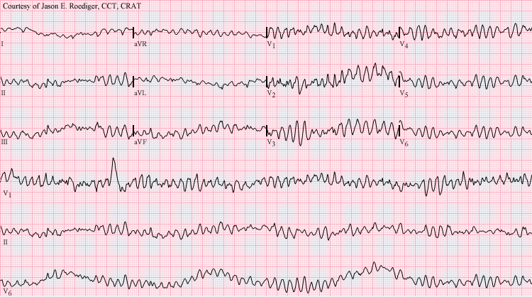 12 Lead ECG showing Ventricular Fibrillation