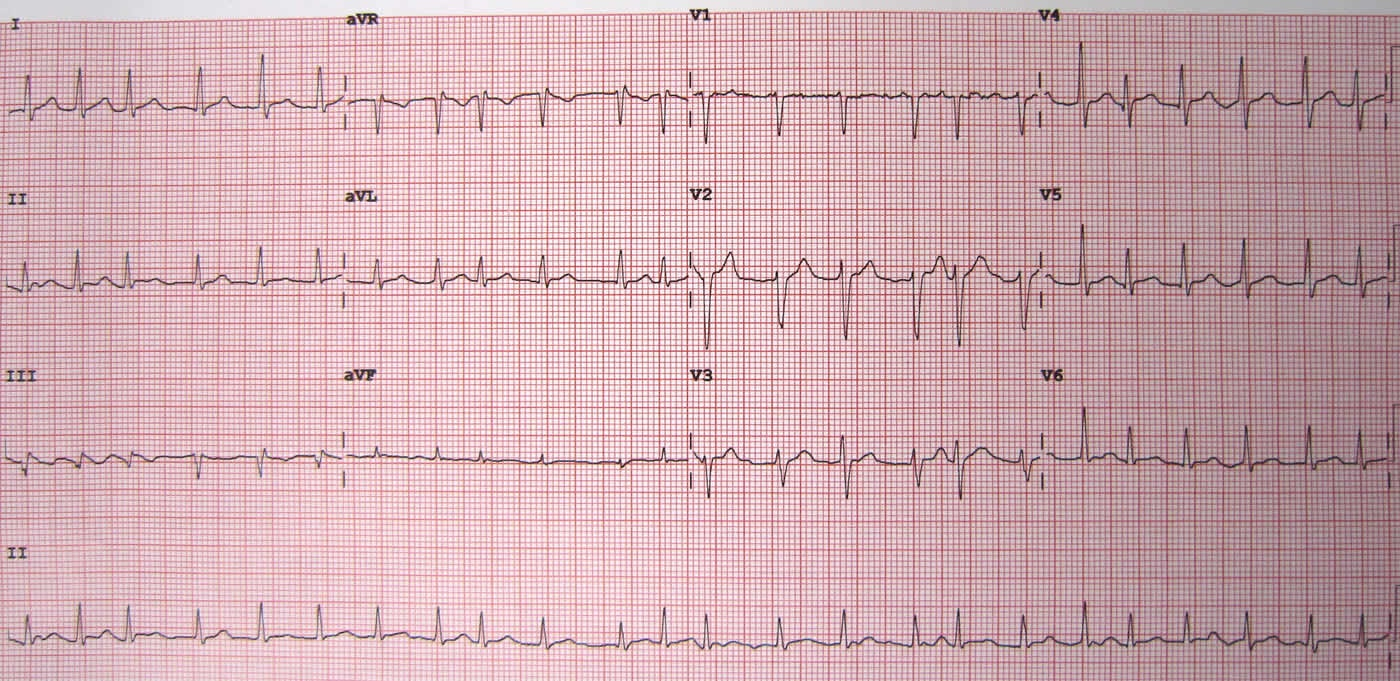 12 lead ECG showing Atrial Fibrillation at approximately 150 beats per minute