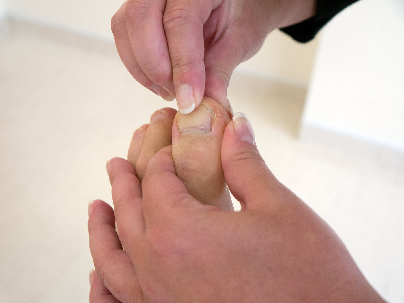 Capillary return - compress the nail bed