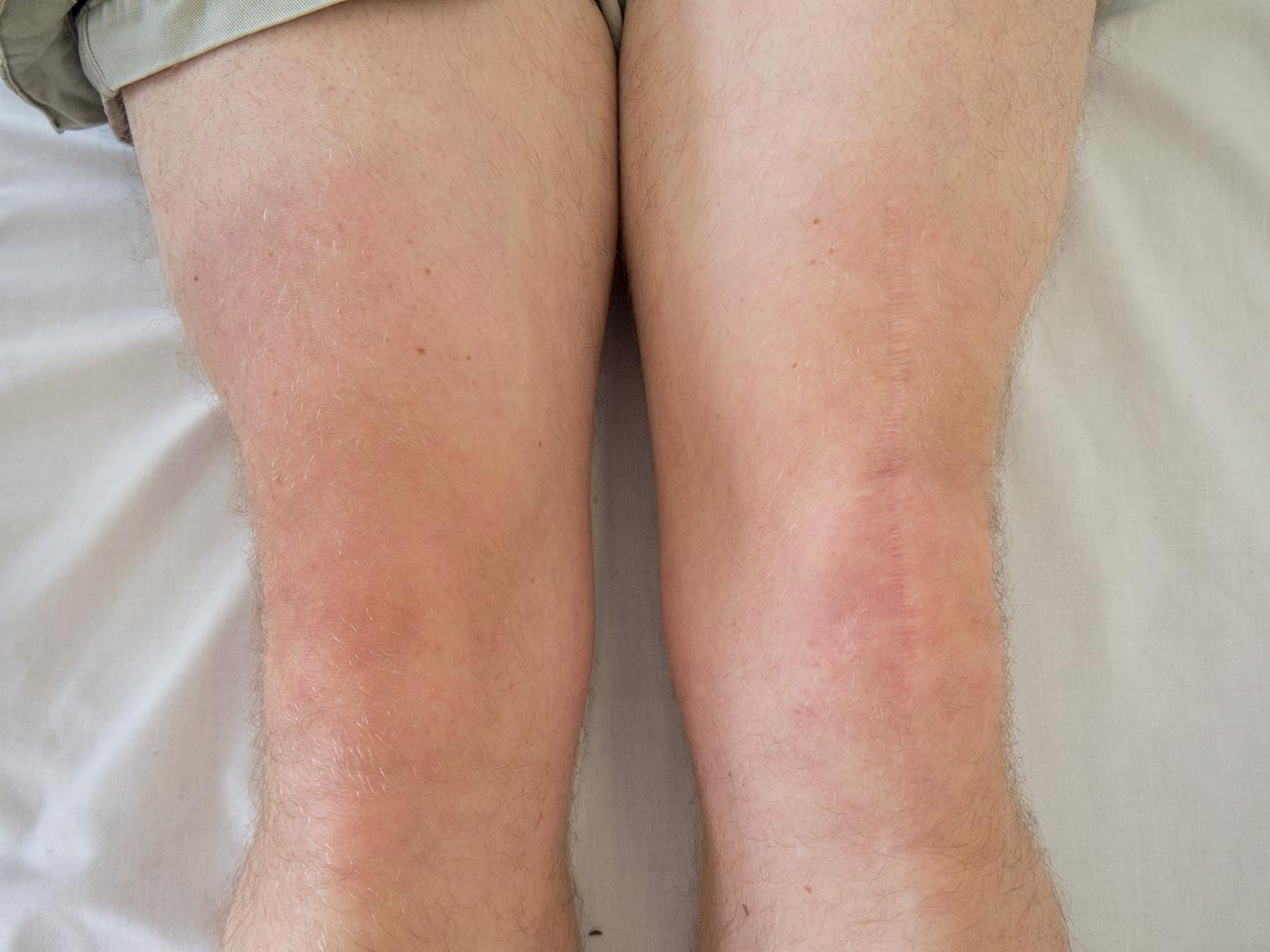 Note the scar over the left knee of this patient