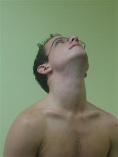 Cervical extension backward movement