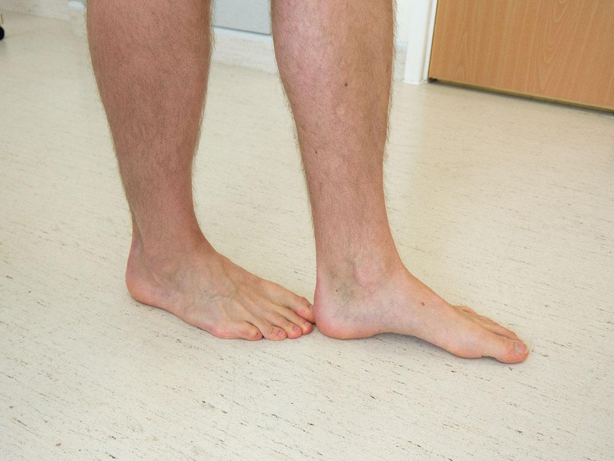 Walk heel-to-toe to assess balance