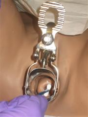 Place the tip of the cervical brush into the external cervical os