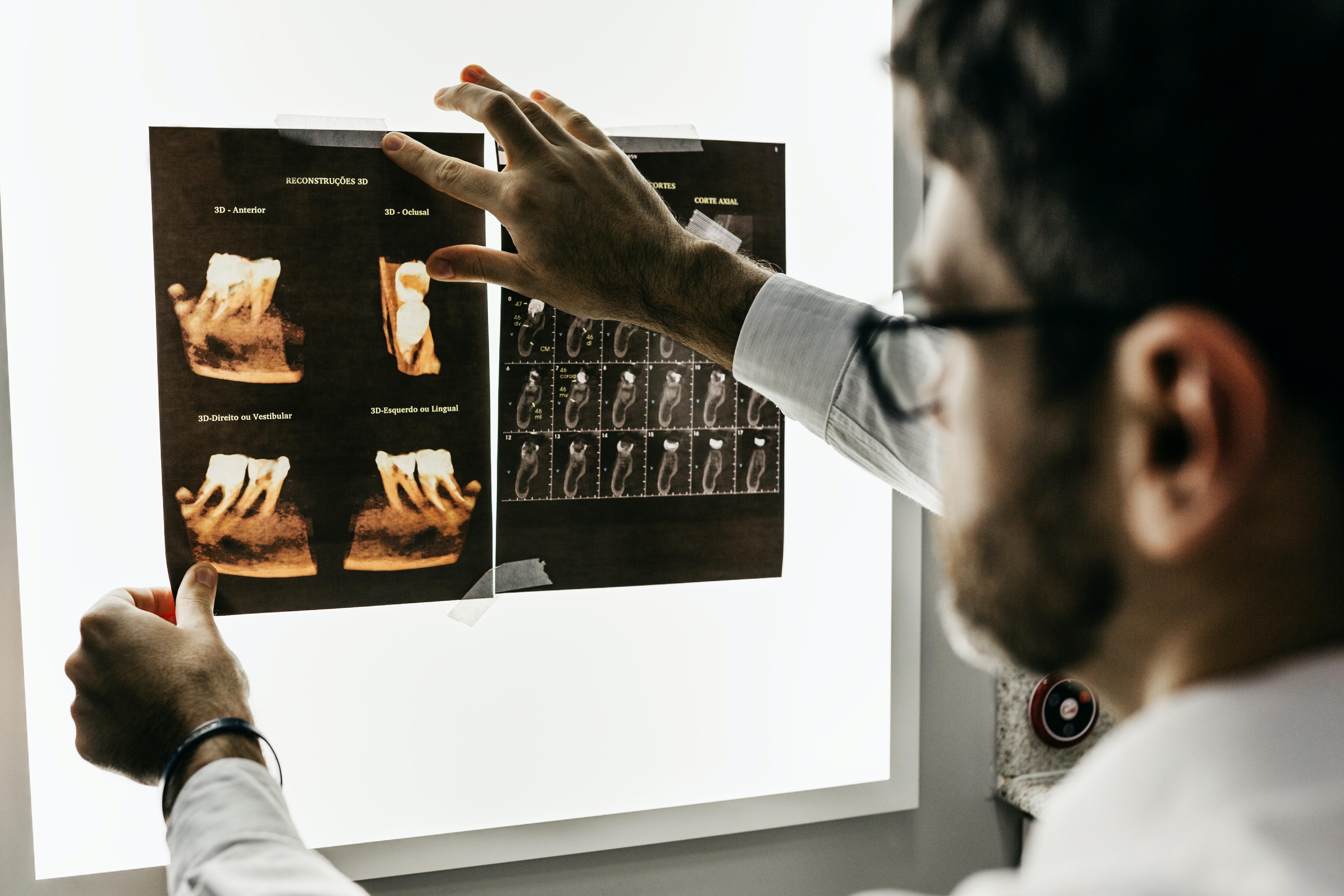dentist planning a treatment