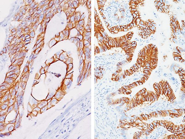 CDH17: sensibilidad y especificidad mejoradas para la identificación de adenocarcinomas de colon y estómago