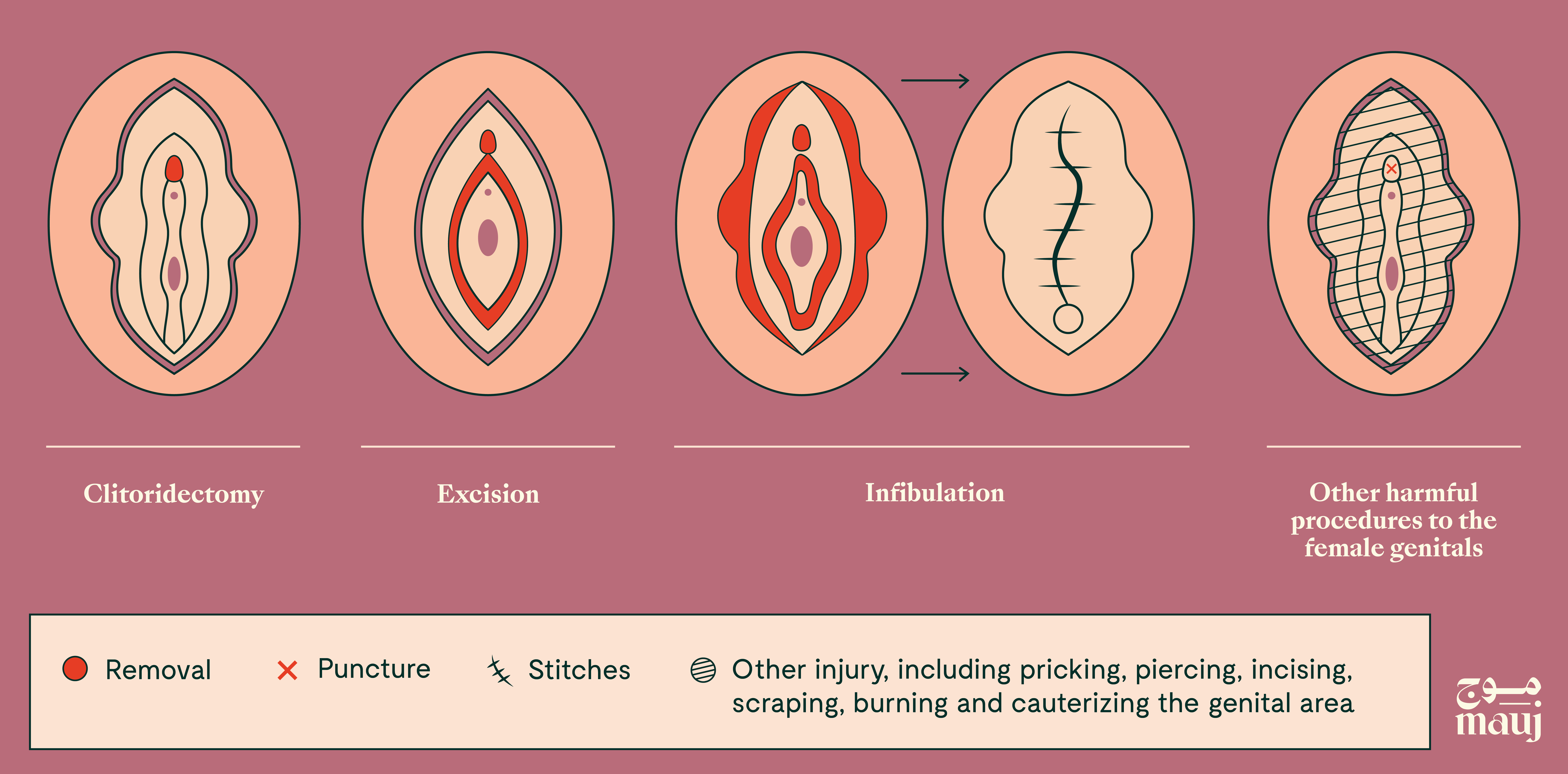 The types of female genital mutilation (FGM).