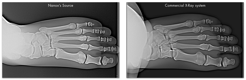 Foot Nanox X-ray images