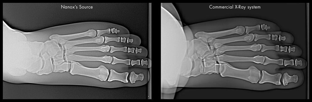 Foot Nanox X-ray images