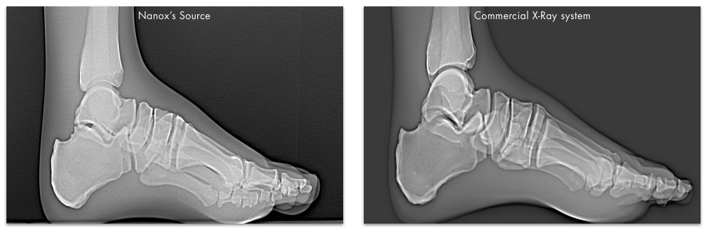 Foot/Ankle Nanox X-ray images