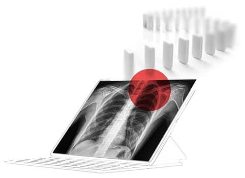 Nanox X Ray