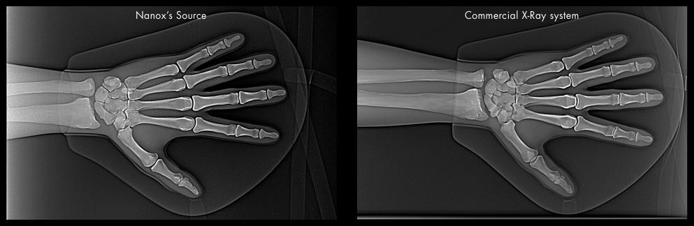 Nanox X-ray Hand Images