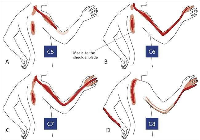 diagram of neck pain causing different patterns of arm shoulder and arm pain