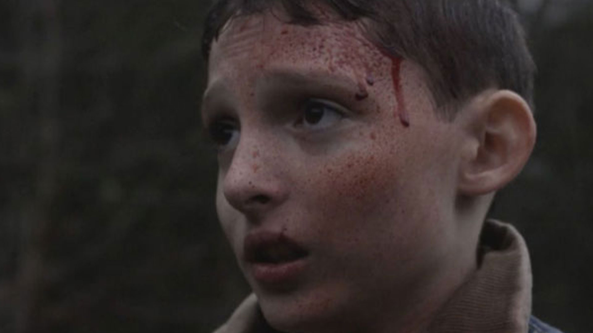 Finn Wolfhard wounded in the woods.