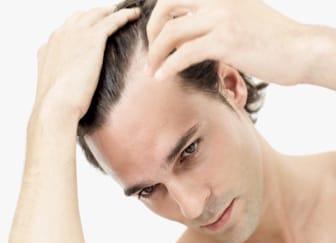 Uomo con capelli artificiali