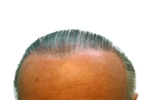Uomo con impianto di capelli sintetici