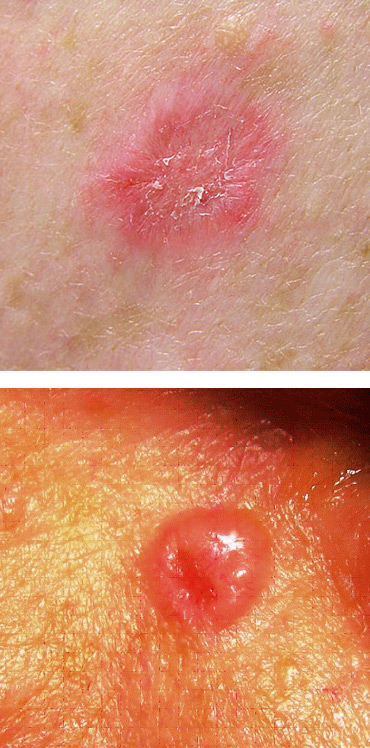 Basal Cell Carcinoma (BCC)