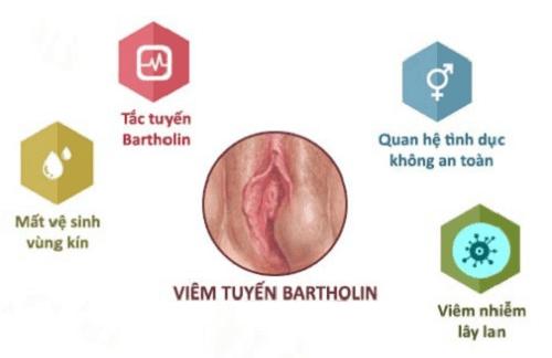 phac-do-chua-tri-viem-tuyen-bartholin