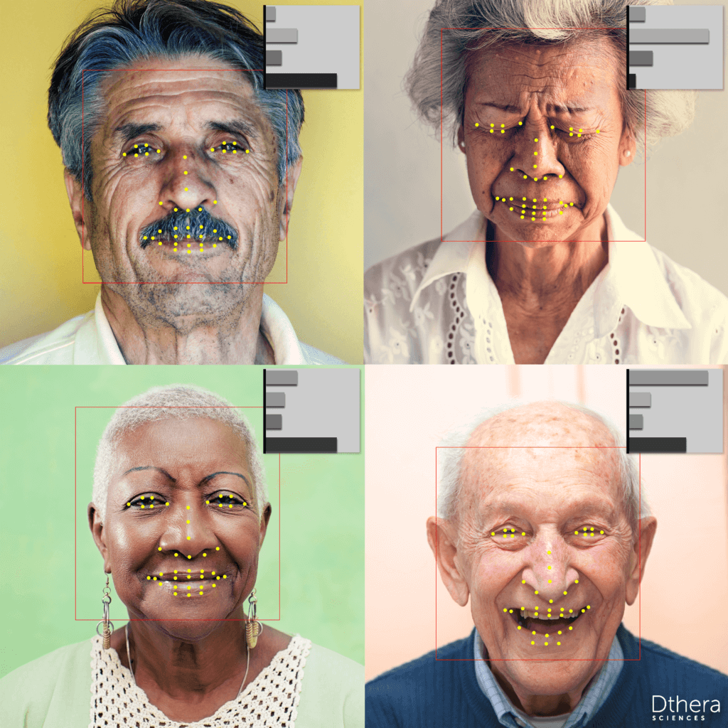 Microexpression analytics being used for Alzheimer's DTx response evaluation