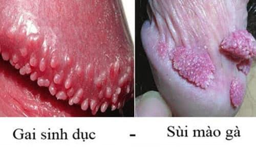 Bệnh sùi mào gà và bệnh mụn cóc sinh dục là khác nhau