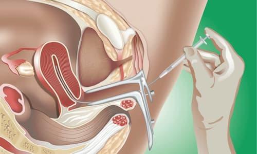 Chữa vô sinh bằng phương pháp bơm tinh trùng vào buồng tử cung IUI.