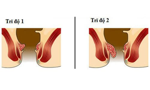 Hình ảnh bệnh trĩ nội độ 1 và độ 2