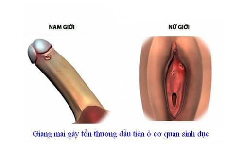 Bệnh giang mai xuất hiện đầu tiên trên cơ quan sinh dục.