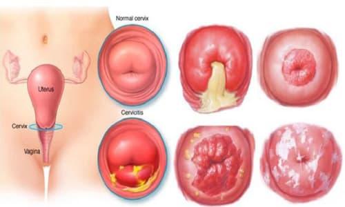 Triệu chứng và dấu diệu của viêm lộ tuyến cổ tử cung