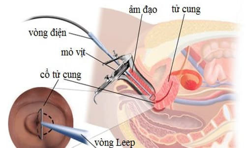 Chữa viêm lộ tuyến cổ tử cung bằng dao LEEP