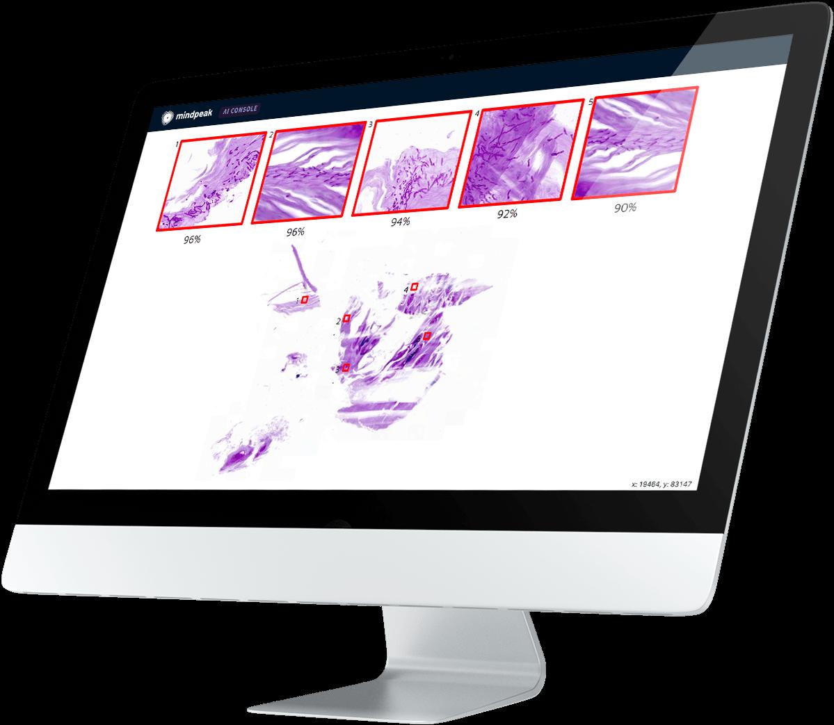Mindpeak Breast IHC being displayed on a monitor