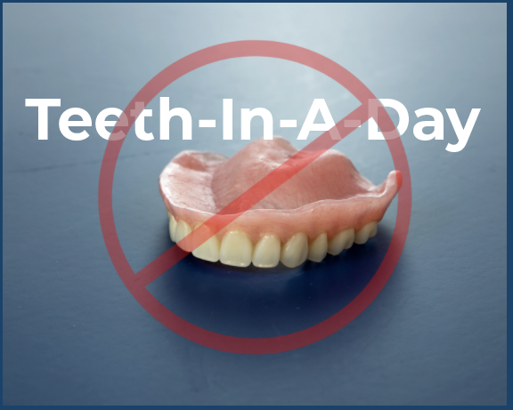 Teeth in a day conversion denture with a line through it