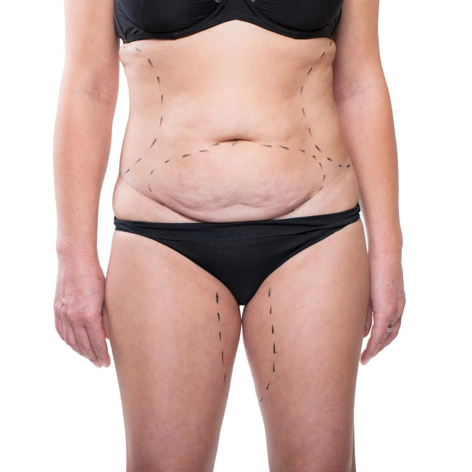 A Quick Guide to Abdominoplasty - Choice Aesthetics