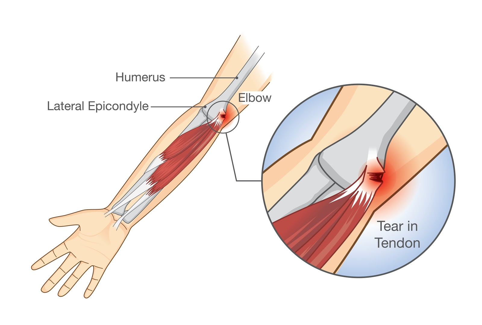 Image showing the tear in tendon associated with tennis elbow.