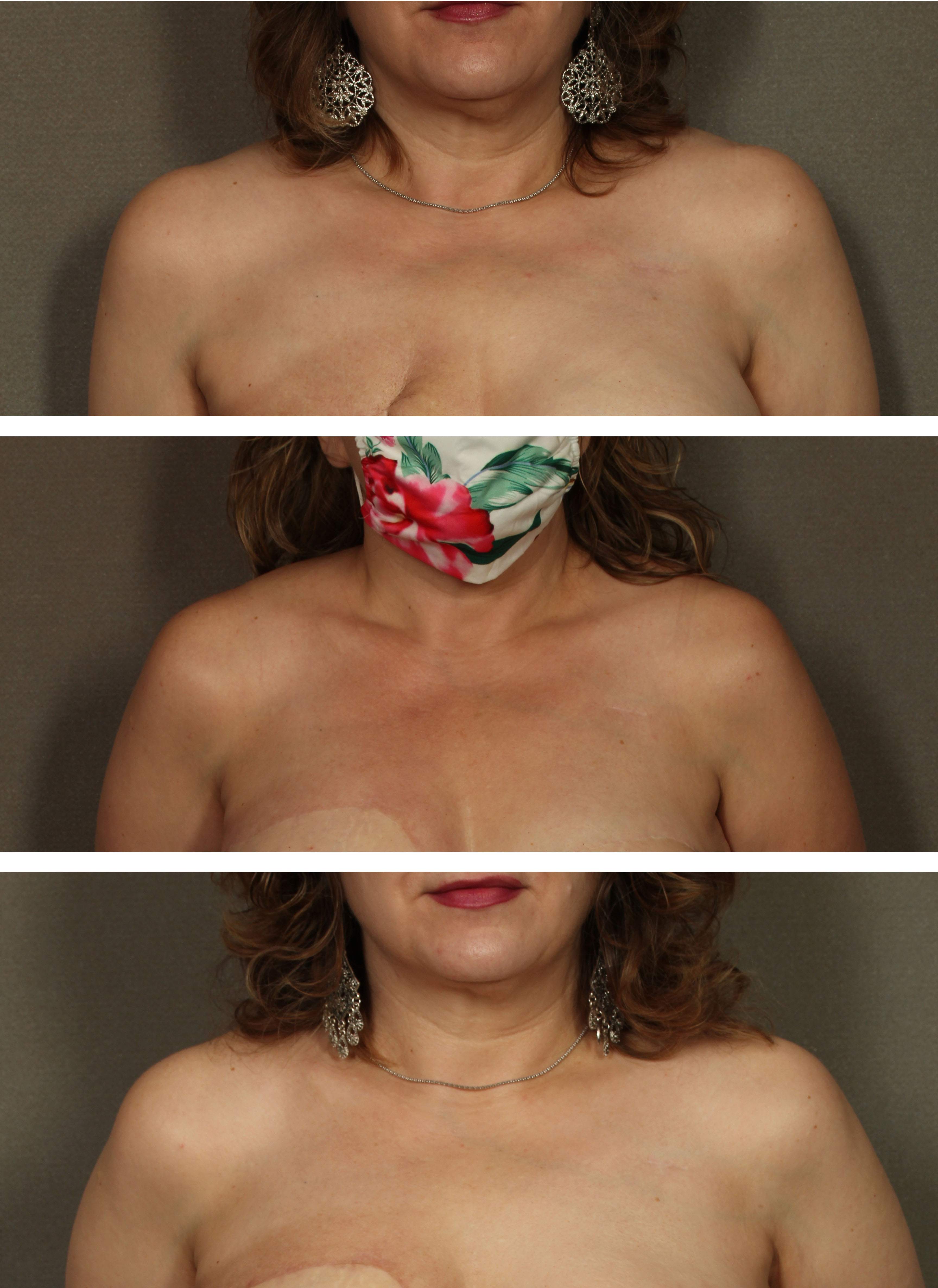 before and after woman smiling 3 views