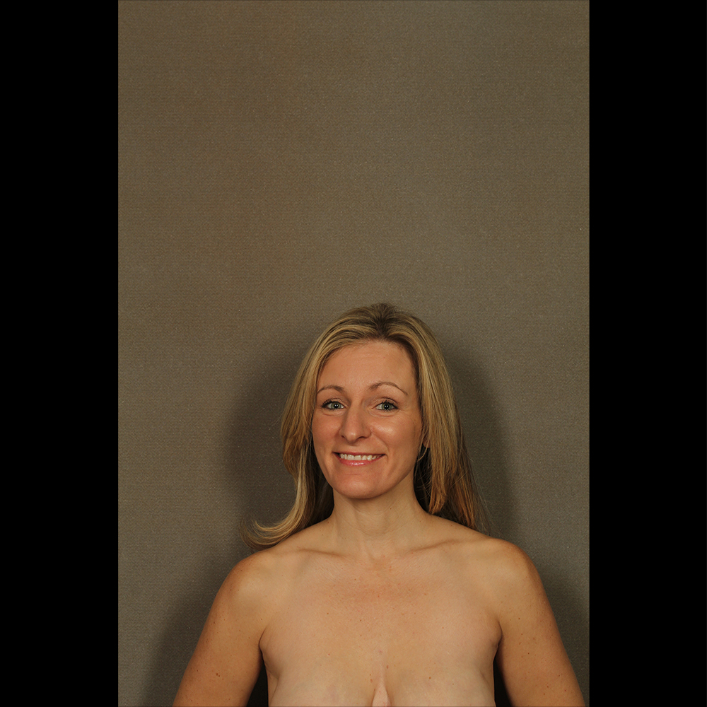 before and after woman smiling