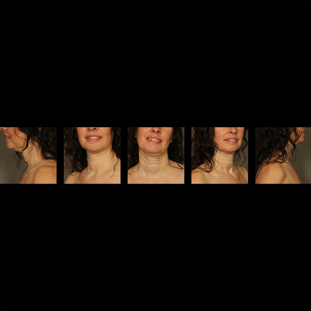 before and after woman smiling 5 angles