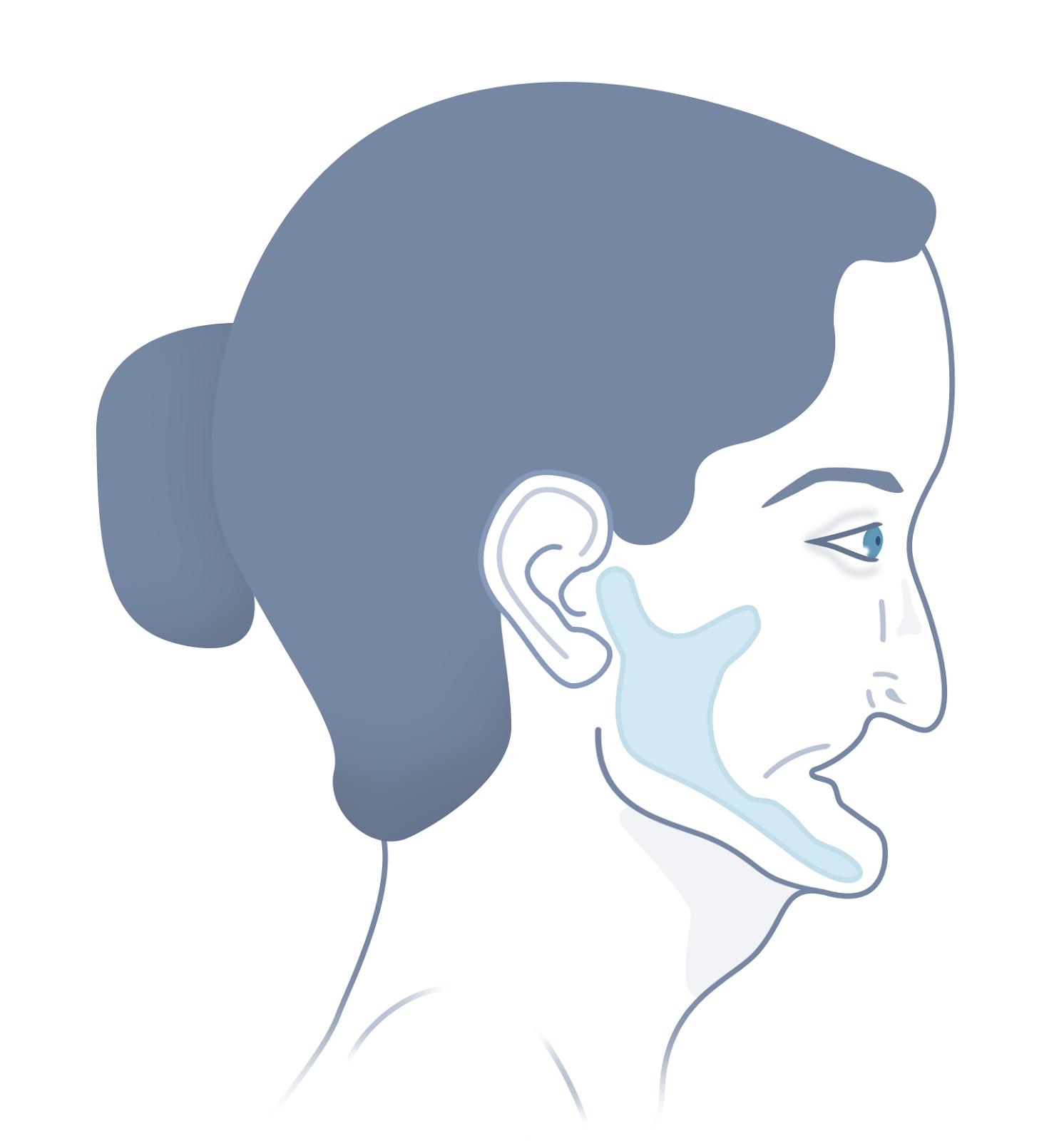 Periodontal Disease Graphic