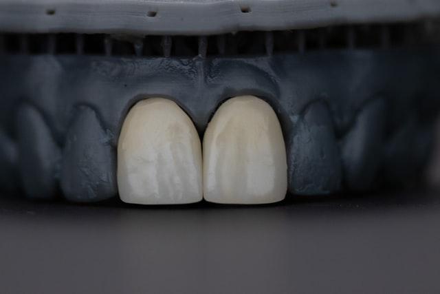 Teeth on an xray