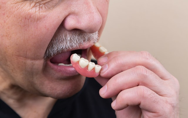 Teeth in a day wax tryins