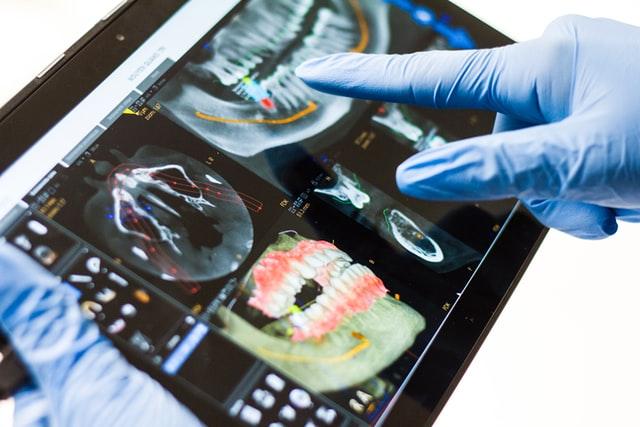 Dental Implants Scans