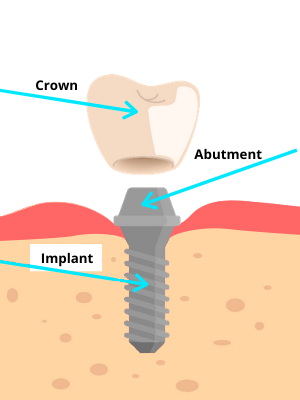 What is a dental implant? Crown, Abutment, and Implant.