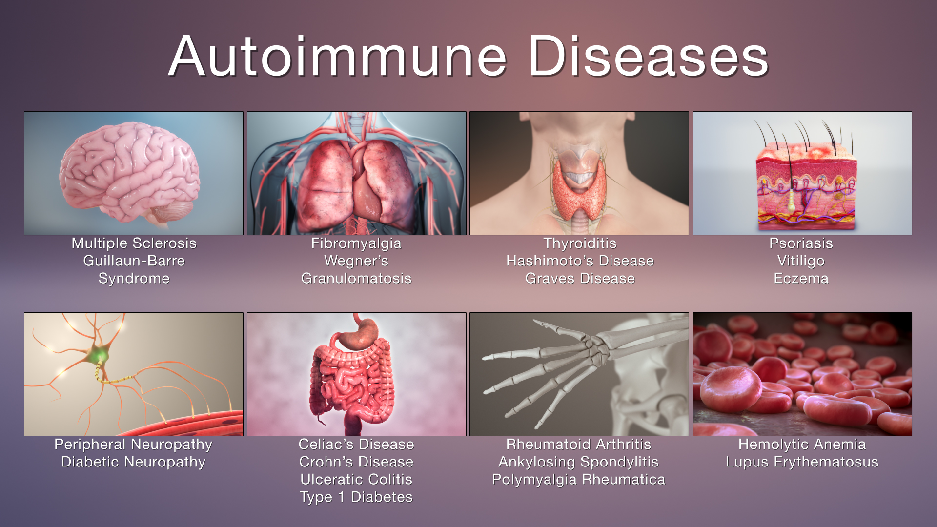 Autoimmune Disease and Hyperbarics
