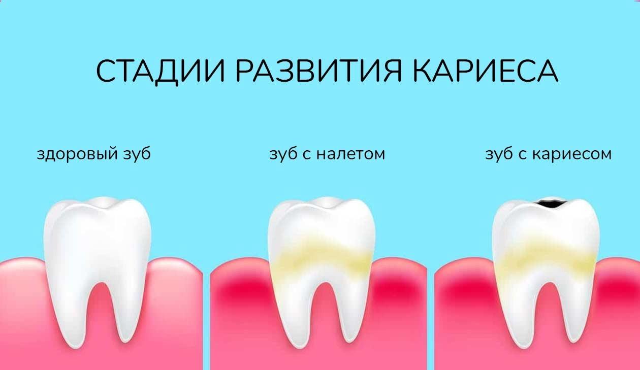 стадии развития кариеса, стоматология Рица