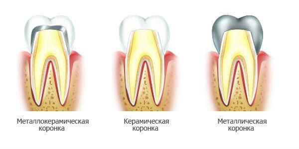 виды зубных коронок, стоматология Рица, Волжский