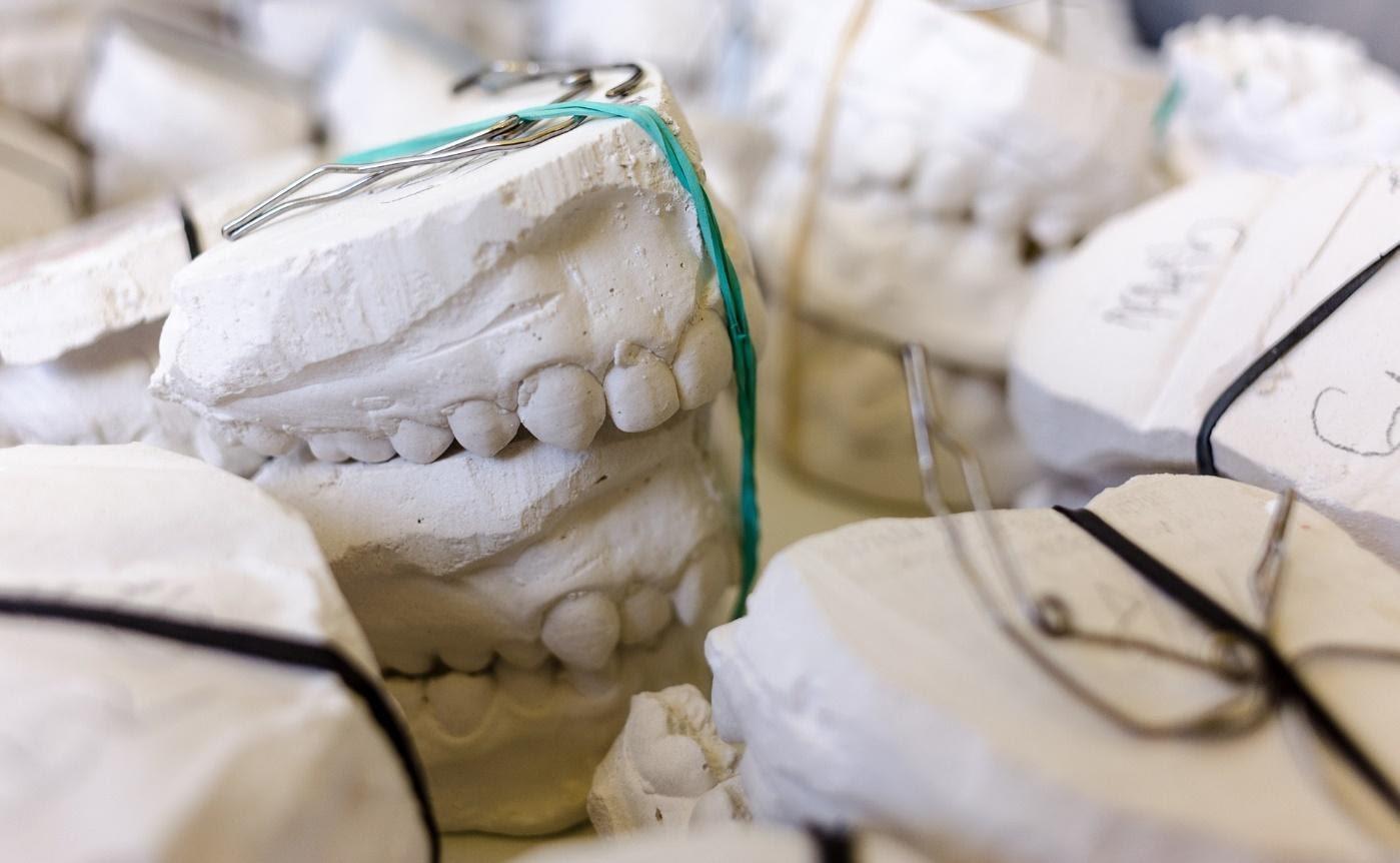 протезирование металлокерамикой в стоматологии Рица, Волжский