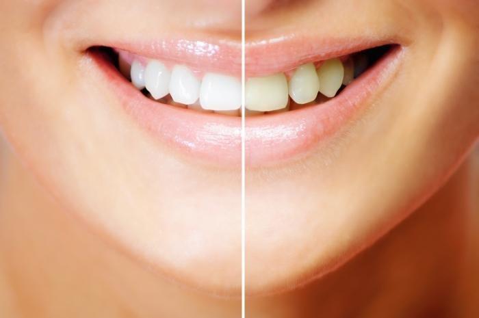 Отбеливание зубов в клинике Рица