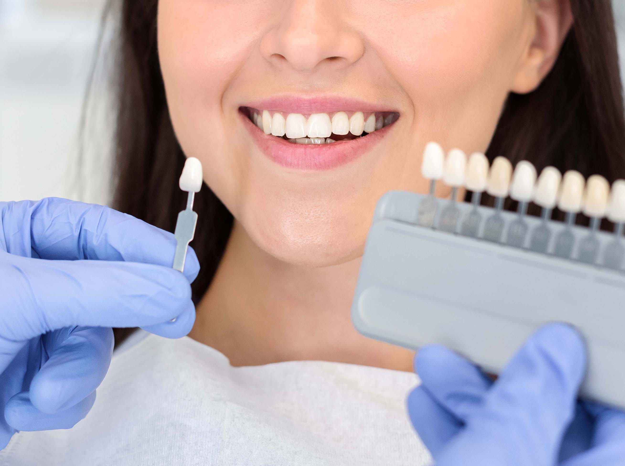 Whitening, Cleaning, Cosmetic Proceadures