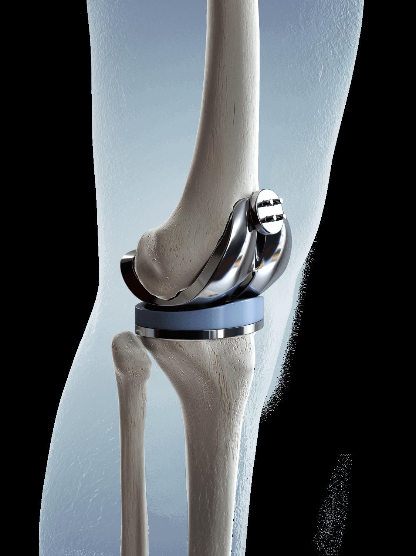 Knee Pathology