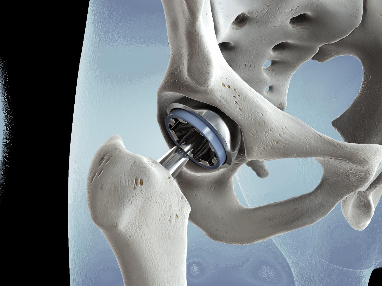 Hip Pathology