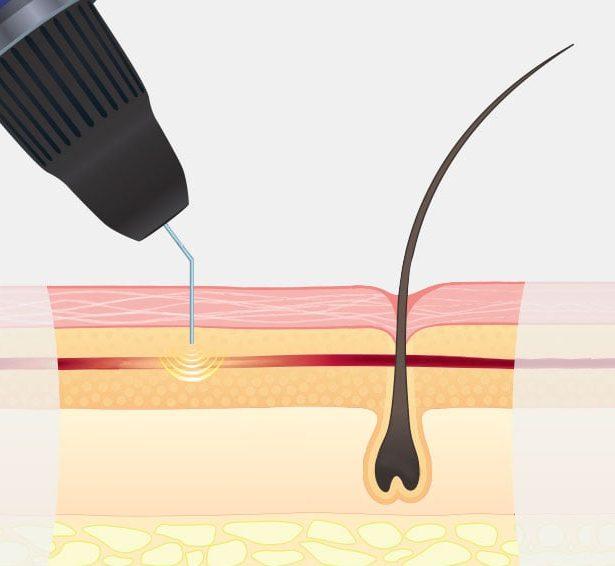 Thermocoagulation Treatment