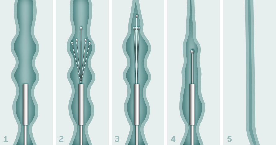 Illustration showing how Radiofrequency Ablation works at UK Vein Clinic
